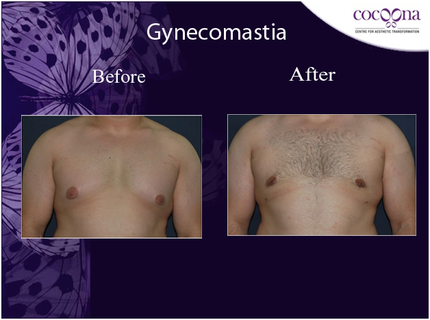 Before and After - Cocoona Cosmetic Surgery