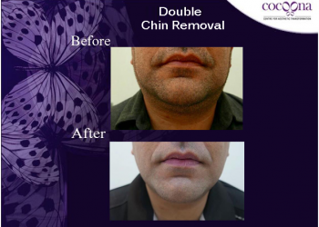 double-chin-removal2