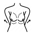 breast_reconstruction