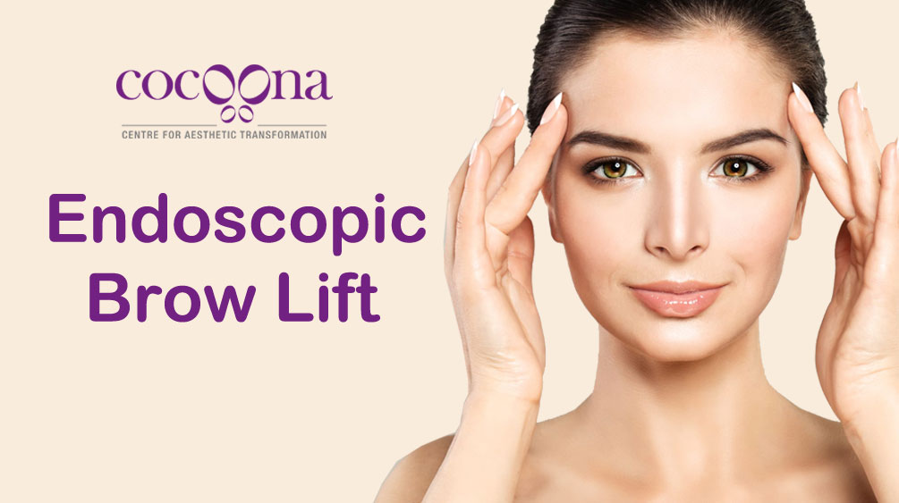 Everything about Endoscopic Brow Lift
