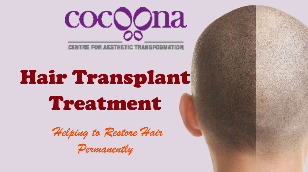 Hair-Transplant-Treatment