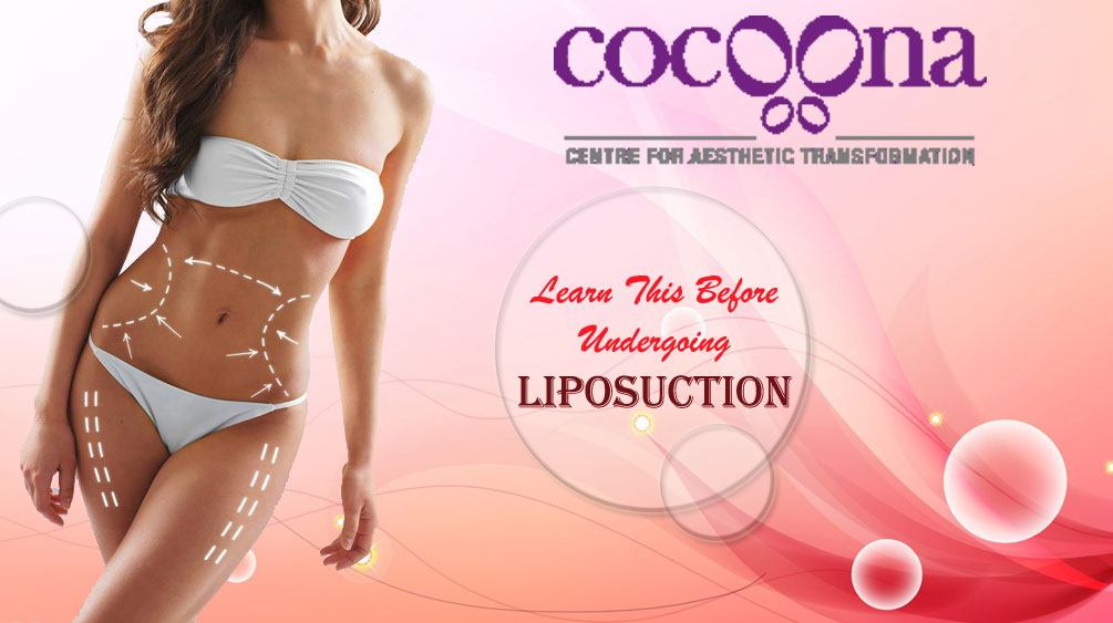 Learn This Before Undergoing Liposuction in India