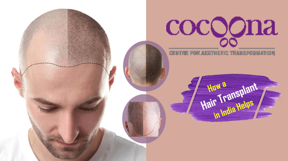 How-a-Hair-Transplant-in-In
