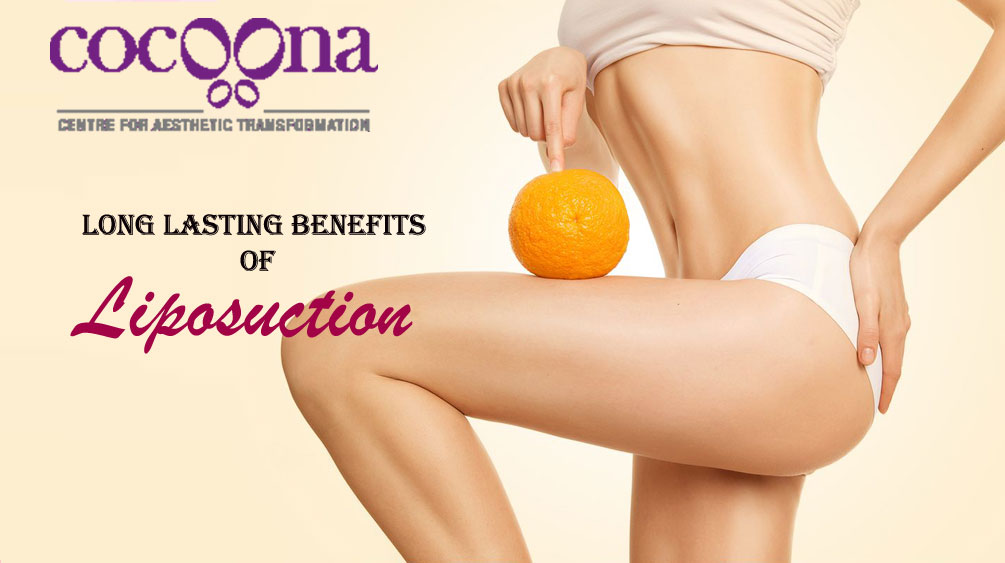 Long Lasting Benefits of Liposuction