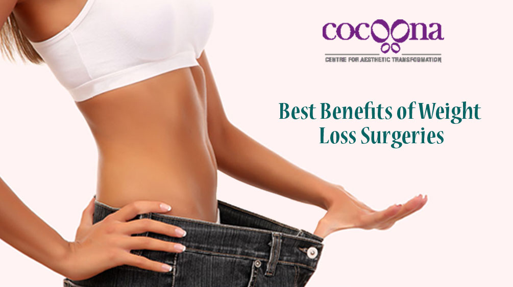 Best Benefits of Weight Loss Surgeries